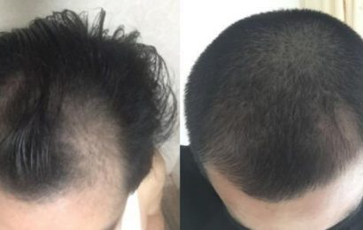 46歲的他戒了洗髮精、改變洗頭方法,4個月就讓頭髮長回來