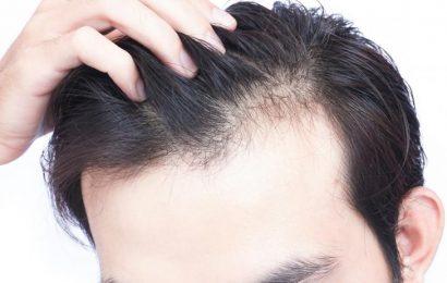 讓洗澡成為生髮時間!萬能生髮術2步驟輕鬆按